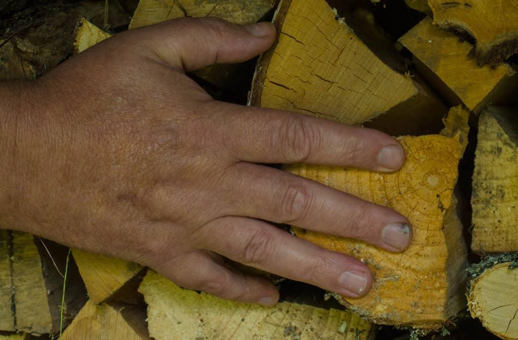 Jag har i stort sett varit förskonad från skador under mitt arbete här på gården. Men när vi körde in veden fick jag en sticka under nageln. Så går det när man inte använder skyddsutrustning (handskar).
